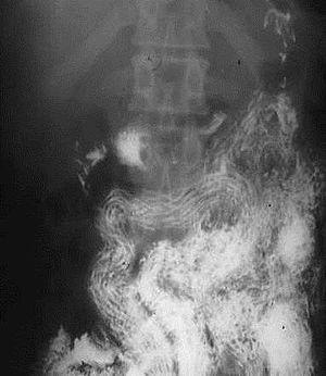 Reacții alergice cu helmintiază, Pinworm pe pliurile perianale