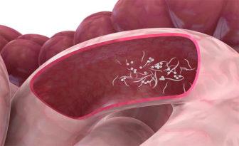 sintomi papilloma virus femminile enterobius vermicularis agente etiologico