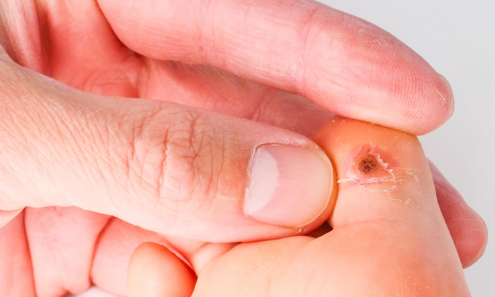 warts on hands in toddlers botuline toxine h