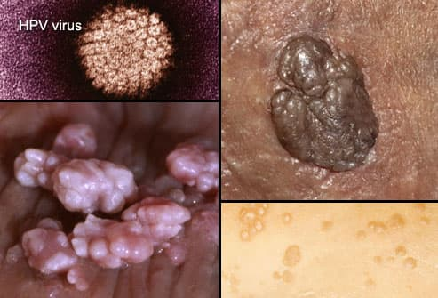 hpv and herpes related