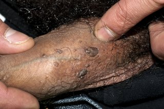 Hpv warts male. hhh | Cervical Cancer | Oral Sex Hpv warts male treatment
