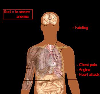 Cum sa scapi de papiloame pe corp - Gută June, Este posibilă îndepărtarea papilomelor cu criopharma