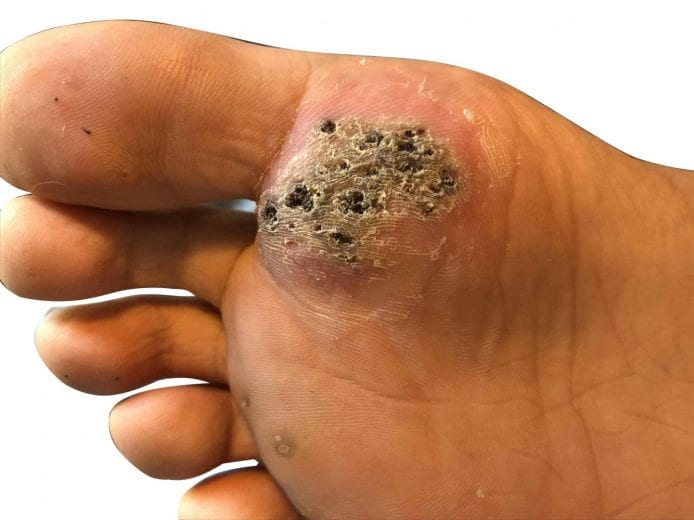 are warts on hands bad