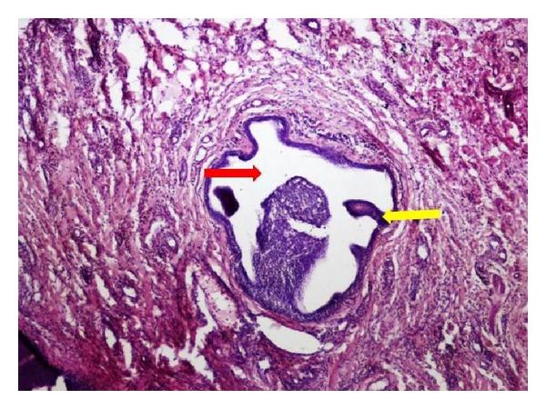 papilloma of parotid gland dysbiosis colon