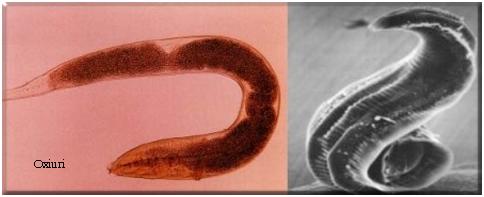 viermisori oxiuri scapă repede de paraziți în organism