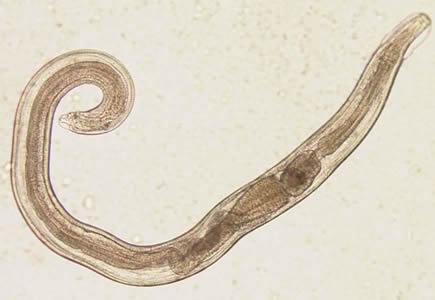 enterobiasis cdc