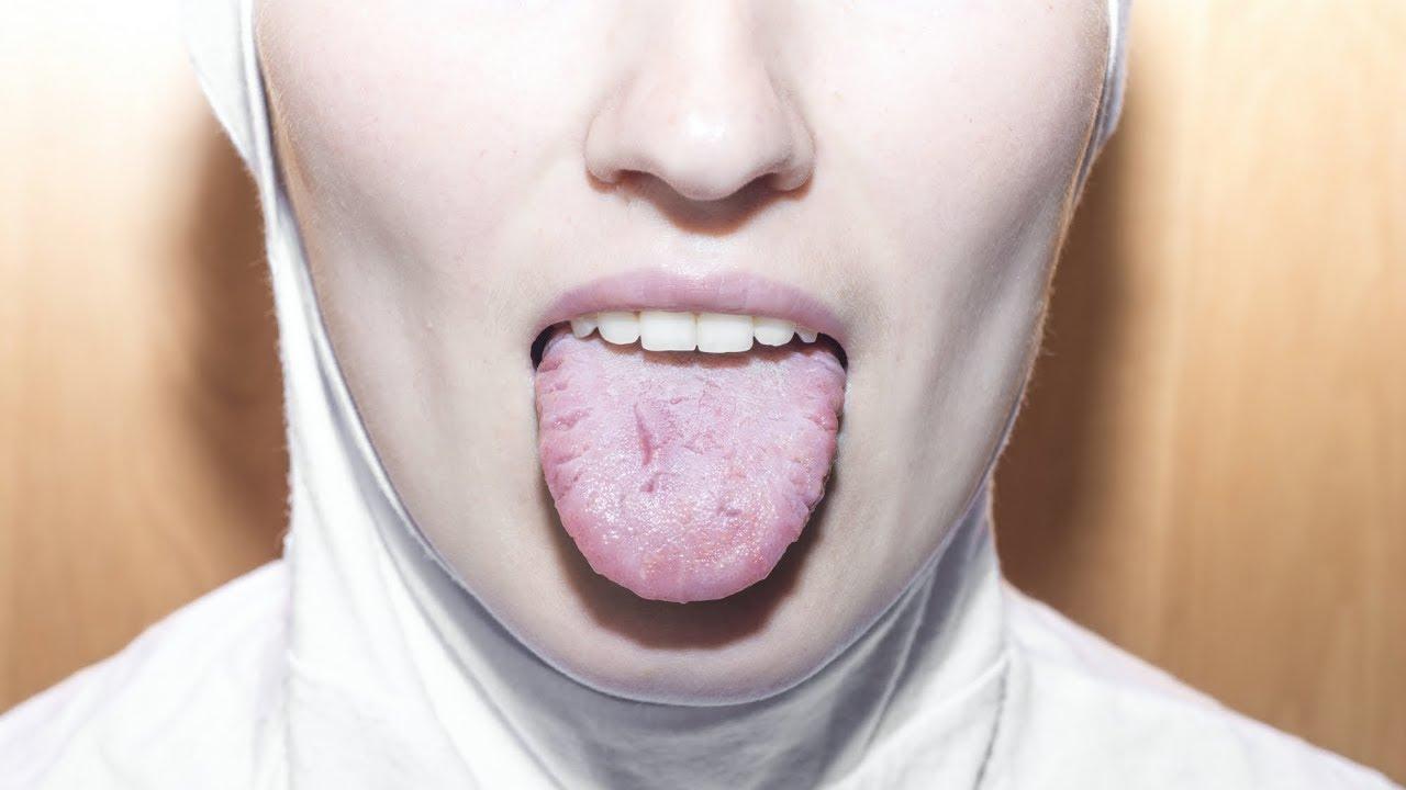 cancer gat varsta papillomavirus on neck