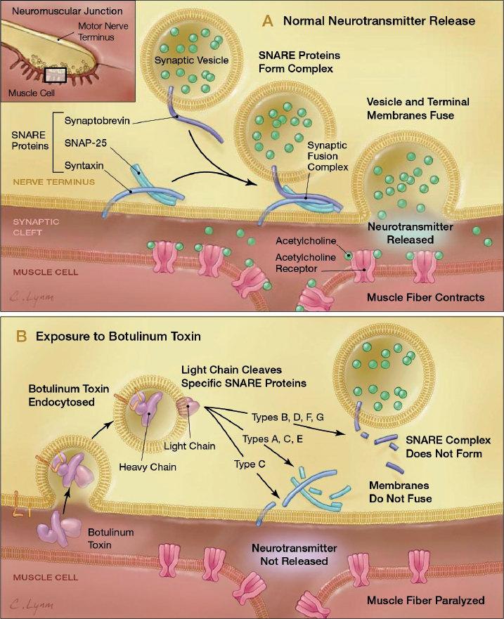 botuline toxine