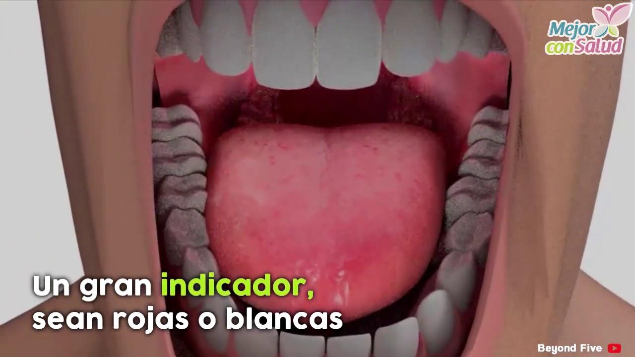cancer bucal primeros sintomas papillomavirus in mouth symptoms