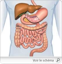cancer colorectal fievre worm în engleză