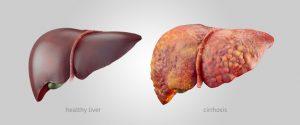 cancer hepatic durata de viata)