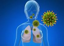 cancer la plamani durata de viata prevenirea viermilor adulți