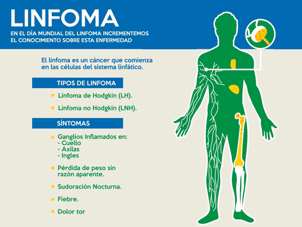 Cancer linfatico hodgkin sintomas. Cancerul limfatic, Cancer hodgkin sintomas