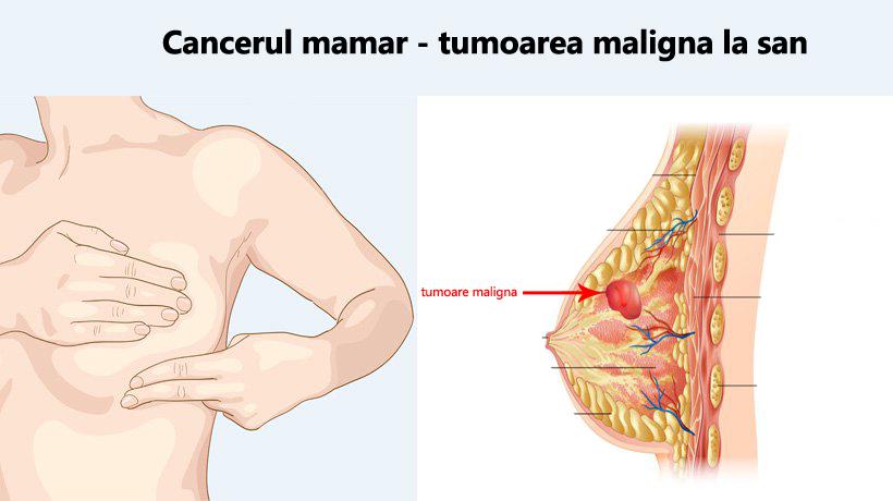 Cancerul de san - ce este si cum il prevenim? | statiadecalcat.ro