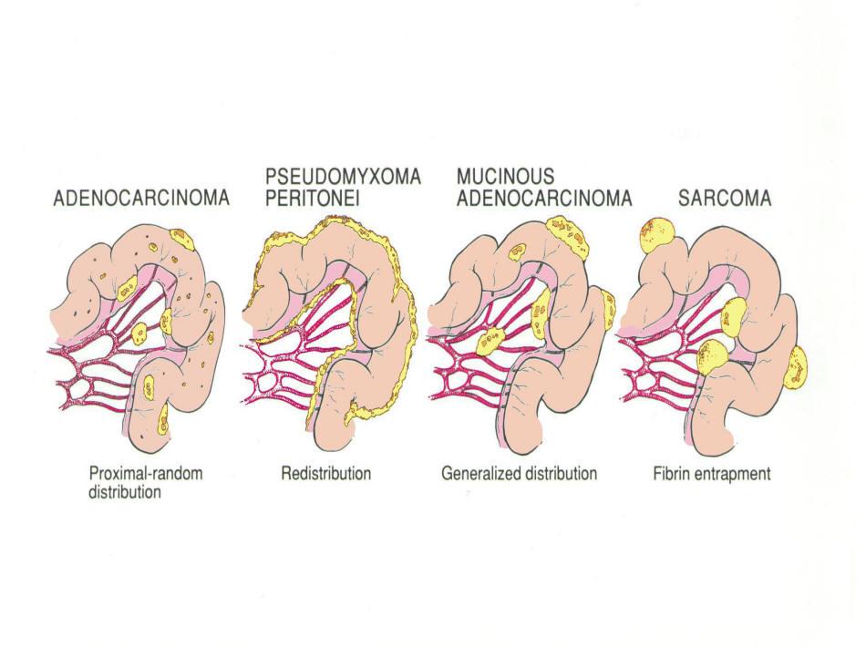 viermi în grafic de dimensiuni la oameni abdominal cancer cells