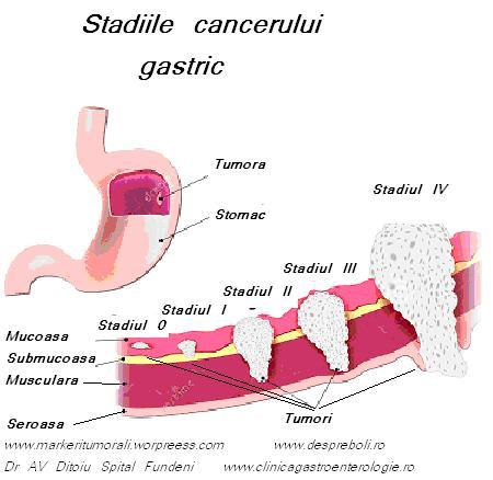 cancerul gastric simptomatologie)