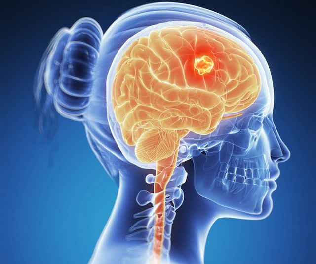 Tumorile cerebrale   apois.ro