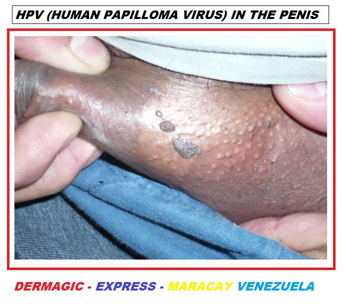 Condilom papilom negii, Papiloamele – cauze, tipuri, metode de tratament - Cancer