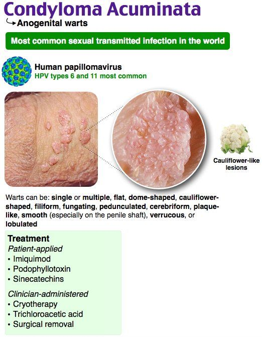 Condylomata acuminata facts. Jak wpasc w anemie. Cancer de piele la copii simptome