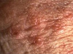 confuz cu verucile genitale