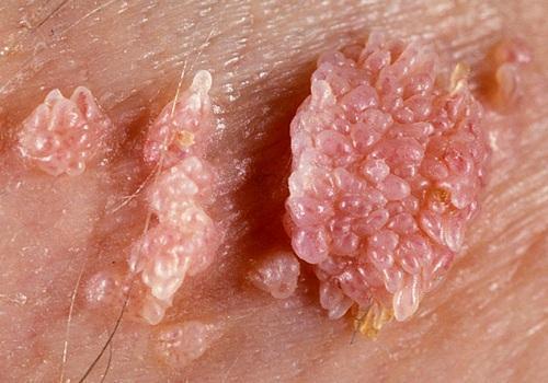 Infectia HPV (negii genitali)