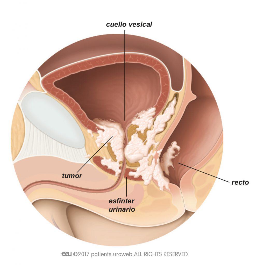 papiloma doctor pleoapa Nu am negi genitale