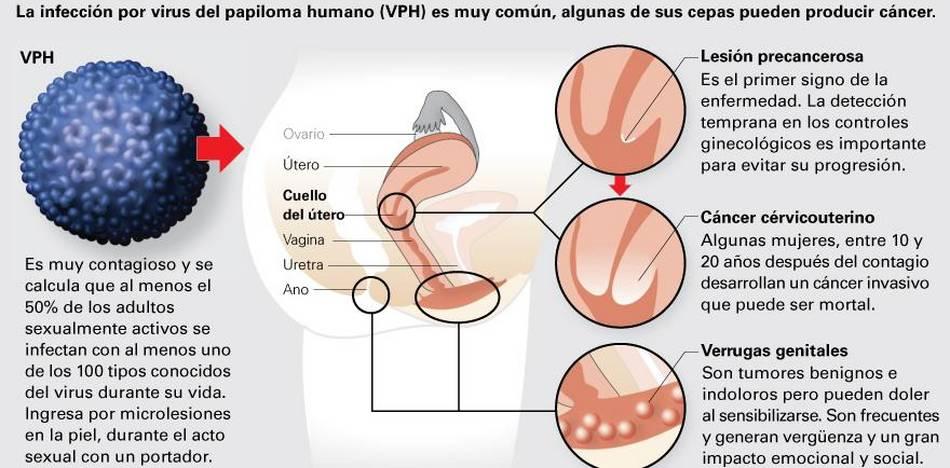 Que es papiloma sintomas - Poate papilomavirus uman provoca prostatita