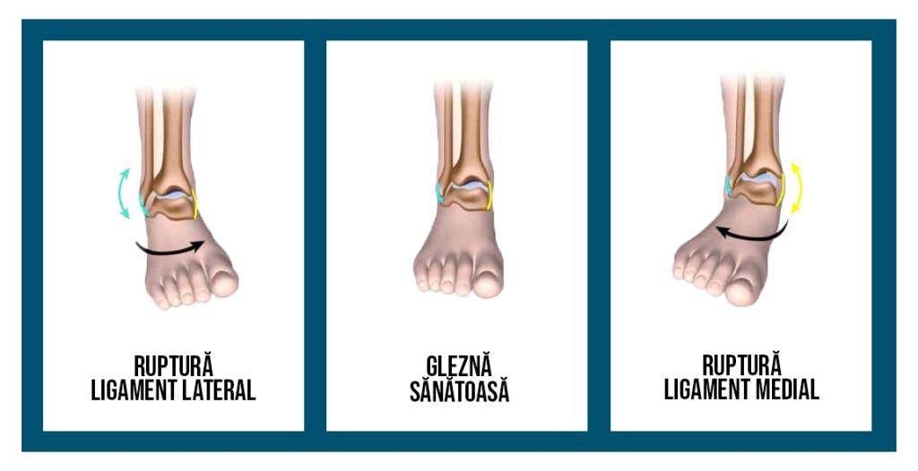 degetele de la picioare devin motive umede