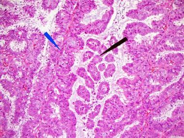 intraductal papilloma treatment emedicine virusul papilomului uman poate fi vindecat
