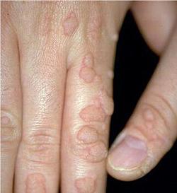 cancer benign tumour cyst