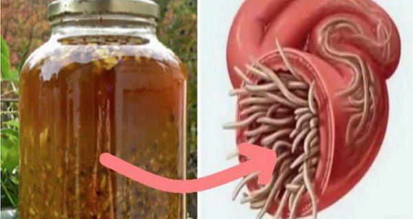 medicamente pentru paraziți în simptomele corpului uman condilom ce boală