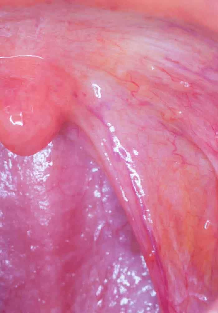 metastatic cancer of the neck prevenție helmint, ce să bea