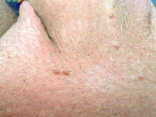 paraziti bilharzia viermi ca tratament pentru alergii
