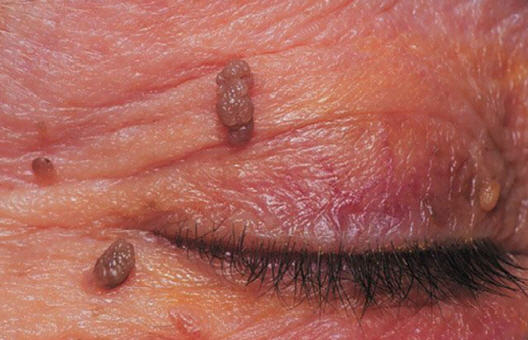 warts and papillomas treatment cancer prostata noutati