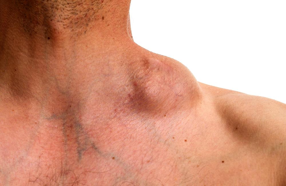 hodgkin cancer causes human papilloma diagnostic
