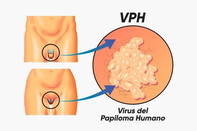 diagrame de tratament cu varicoză)