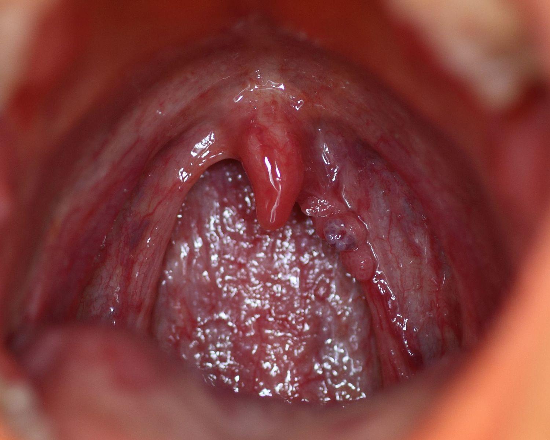 elimina forumul papiloma enterobioza este contagioasă