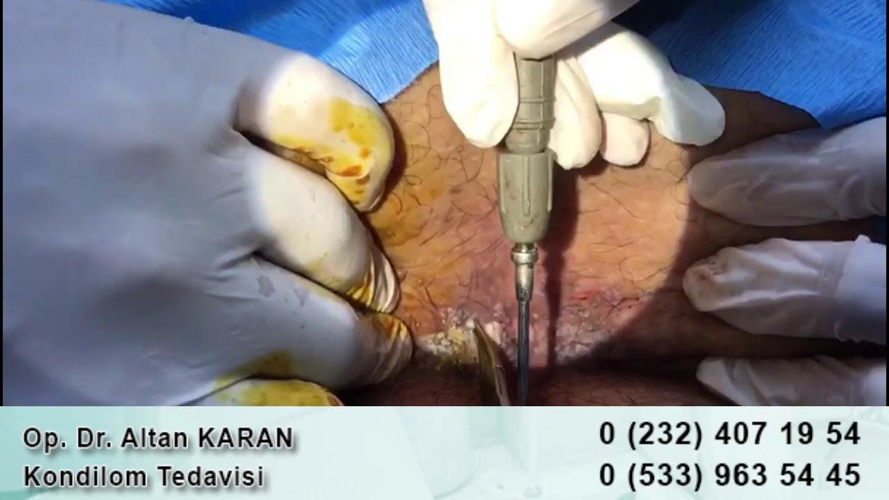 hpv from herpes virus tratament paraziti intestinali naturist