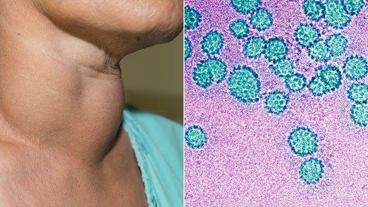 patogeneza condilomului papilloma virus hpv 66
