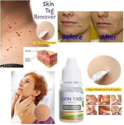 Hpv warts will go away, Plantar Wart Shaving Procedure papiloma ginecologia