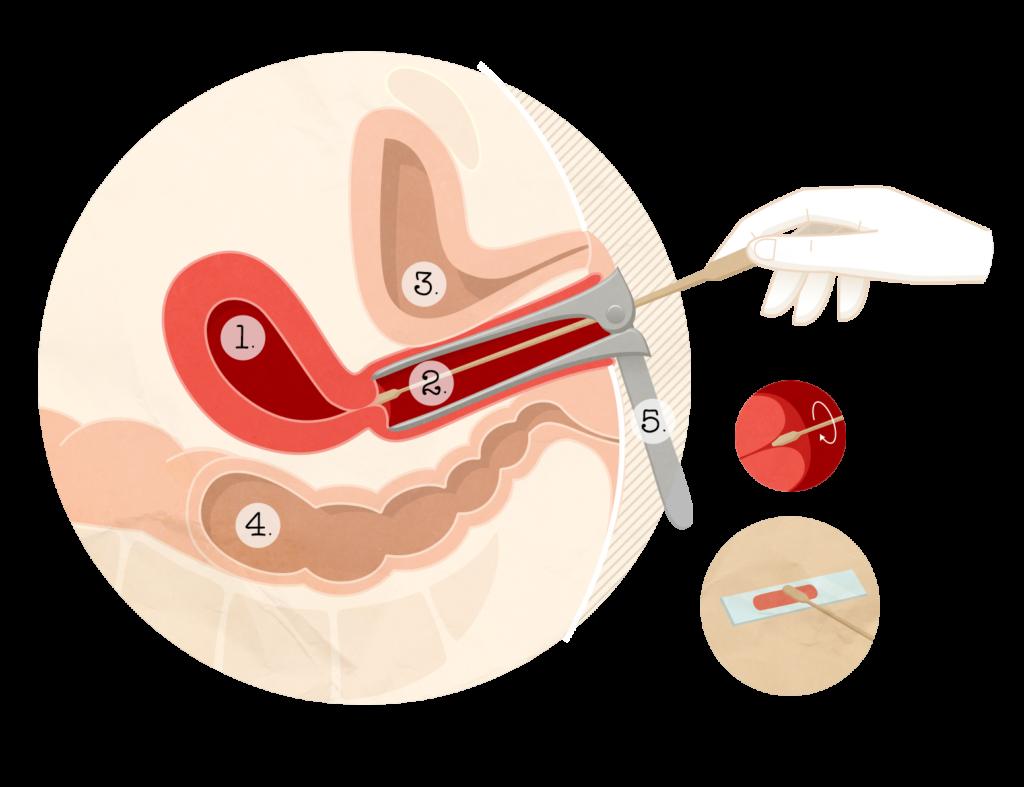 tratamentul viermilor în forul femeilor însărcinate scapă de viermi o dată pentru totdeauna
