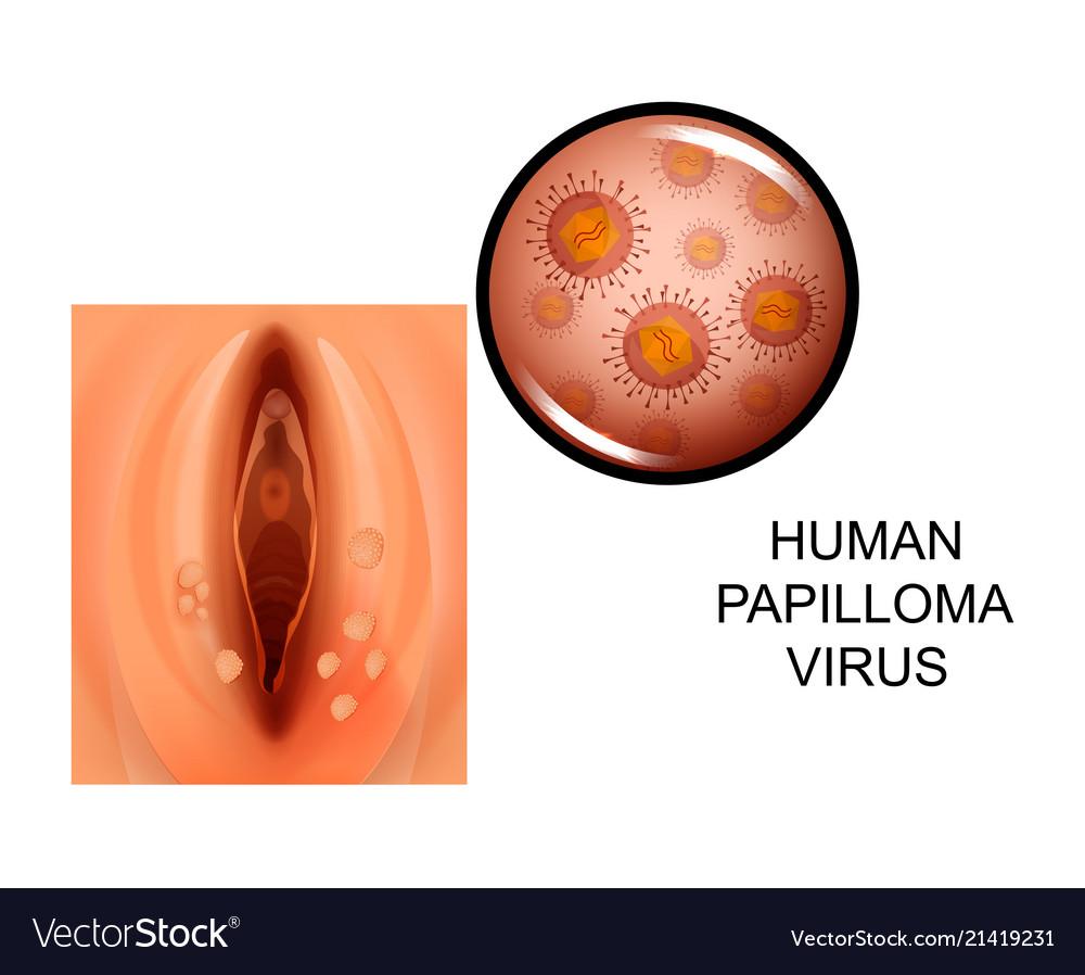 human papilloma is vestibular papillomatosis tedavisi