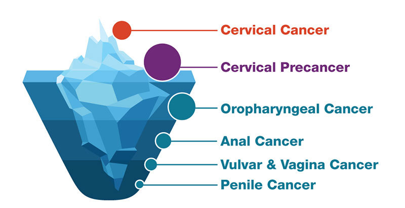 human papillomavirus and related cancers
