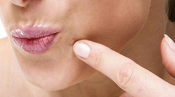 human papillomavirus what causes it condilom simptome genitale ale colului uterin