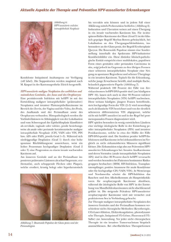viermi și medicamente pentru giardia papilloma intraduttale pericoloso