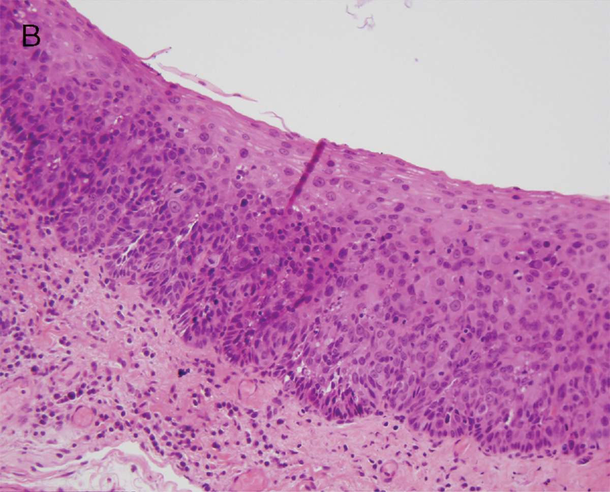 laryngeal papilloma dysplasia