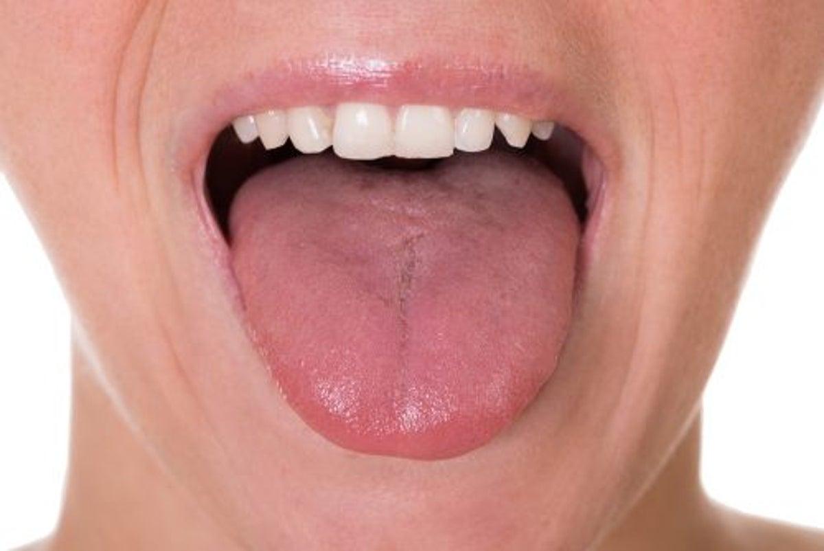 lingua bianca papilloma dacă paraziții pot intra în creier
