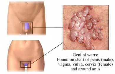 mici condiloame în vagin simptomele unui parazit larg