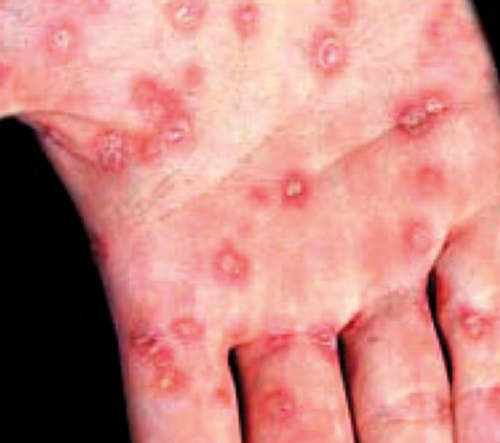 il virus hpv come si trasmette tratamentul paraziților este gravidă