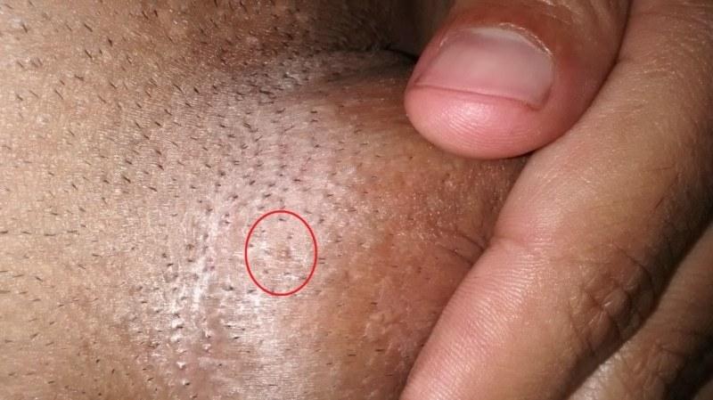 negi genitale pe penis